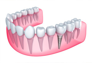 Dental Implants James Island SC