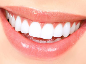 Teeth Whitening - James Island, SC